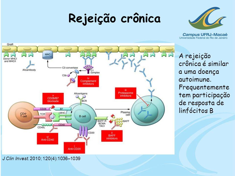 Rejeição crônica A rejeição crônica é similar a uma doença autoimune. Frequentemente tem participação de resposta de linfócitos B J Clin Invest. 2010;