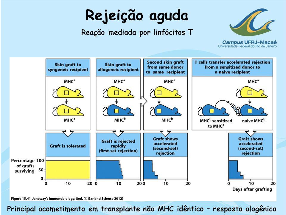 Rejeição aguda Reação mediada por linfócitos T Principal acometimento em transplante não MHC idêntico – resposta alogênica