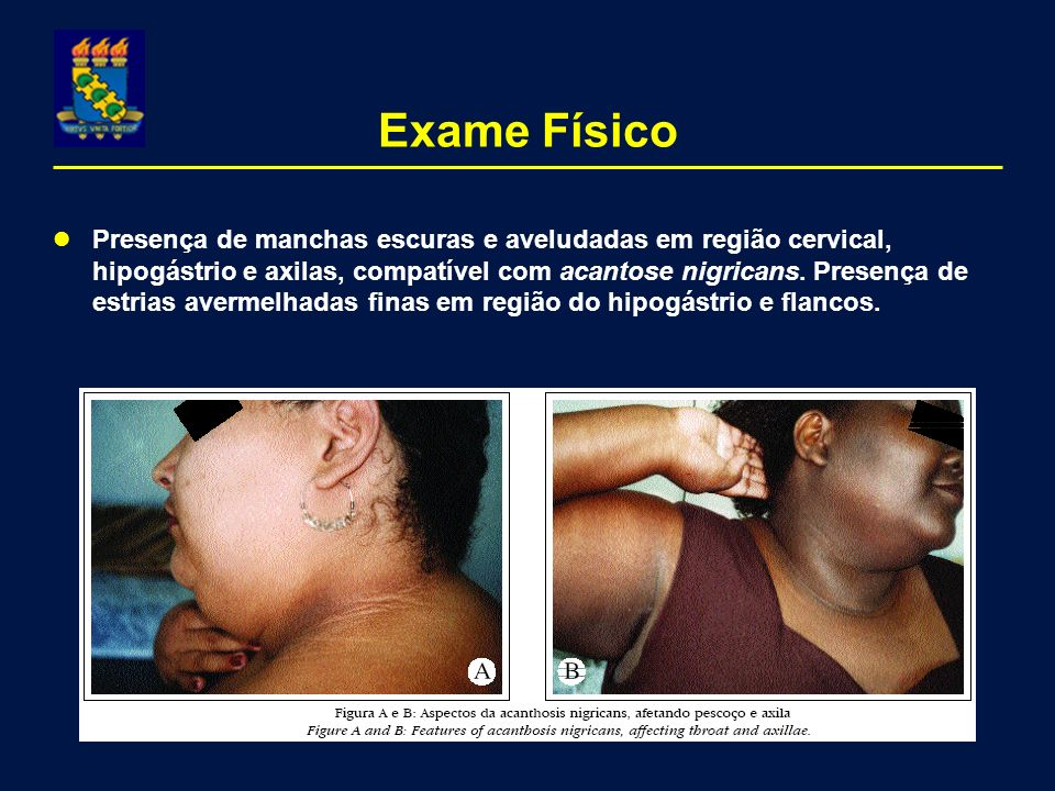 Exame Físico Presença de manchas escuras e aveludadas em região cervical, hipogástrio e axilas, compatível com acantose nigricans. Presença de estrias