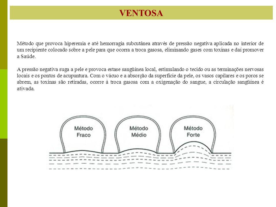 VENTOSA Método que provoca hiperemia e até hemorragia subcutânea através de pressão negativa aplicada no interior de um recipiente colocado sobre a pe