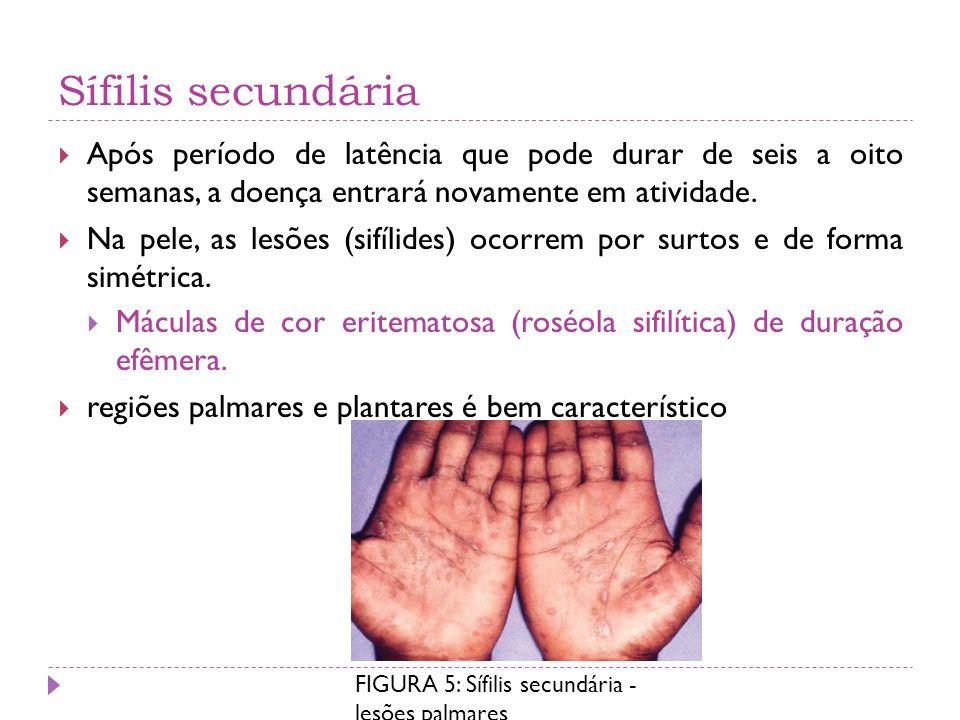 Sífilis secundária Após período de latência que pode durar de seis a oito semanas, a doença entrará novamente em atividade. Na pele, as lesões (sifíli