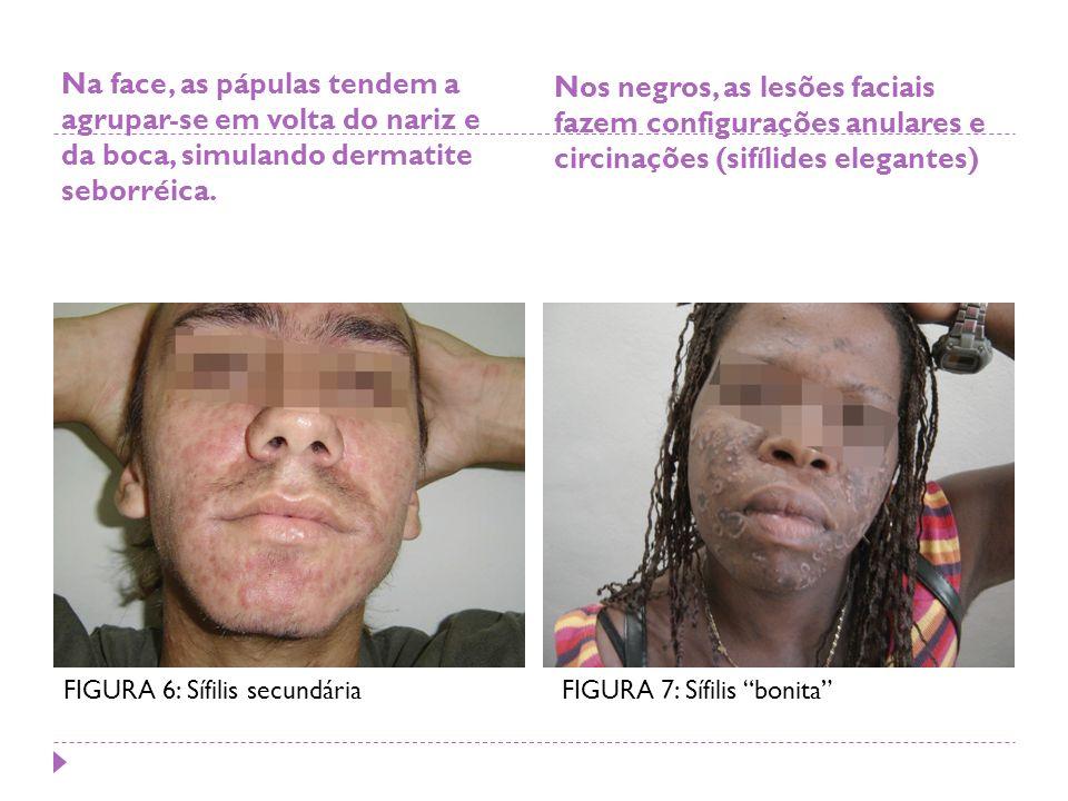 Na face, as pápulas tendem a agrupar-se em volta do nariz e da boca, simulando dermatite seborréica. Nos negros, as lesões faciais fazem configurações