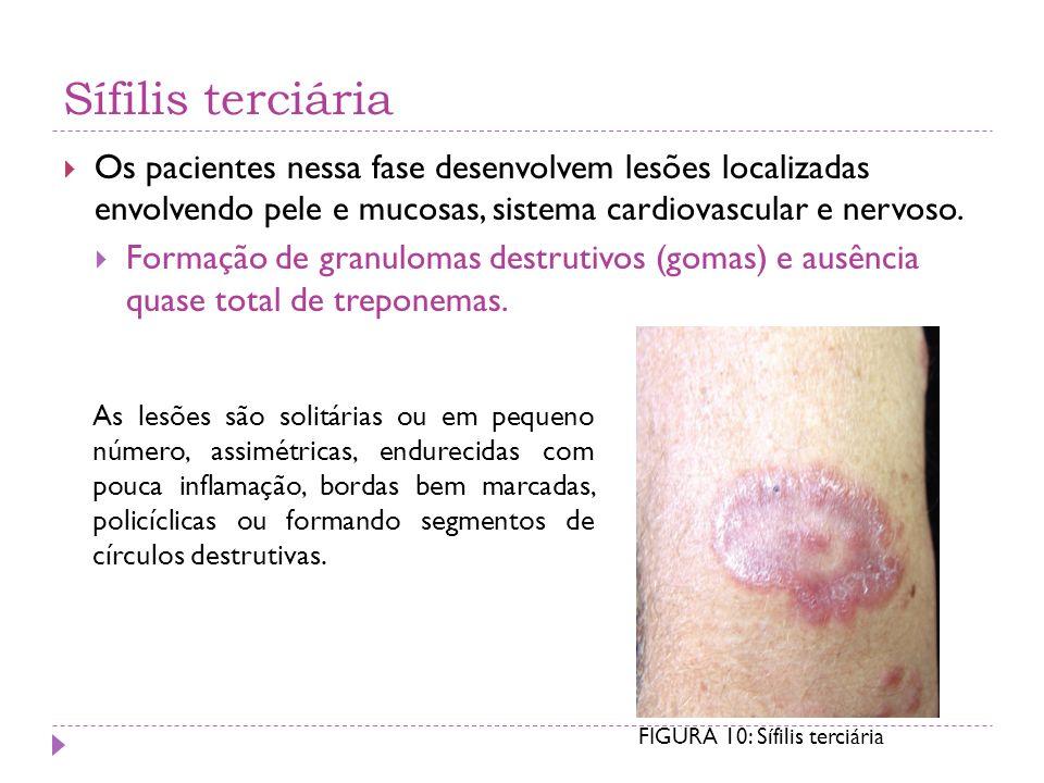 Sífilis terciária Os pacientes nessa fase desenvolvem lesões localizadas envolvendo pele e mucosas, sistema cardiovascular e nervoso. Formação de gran