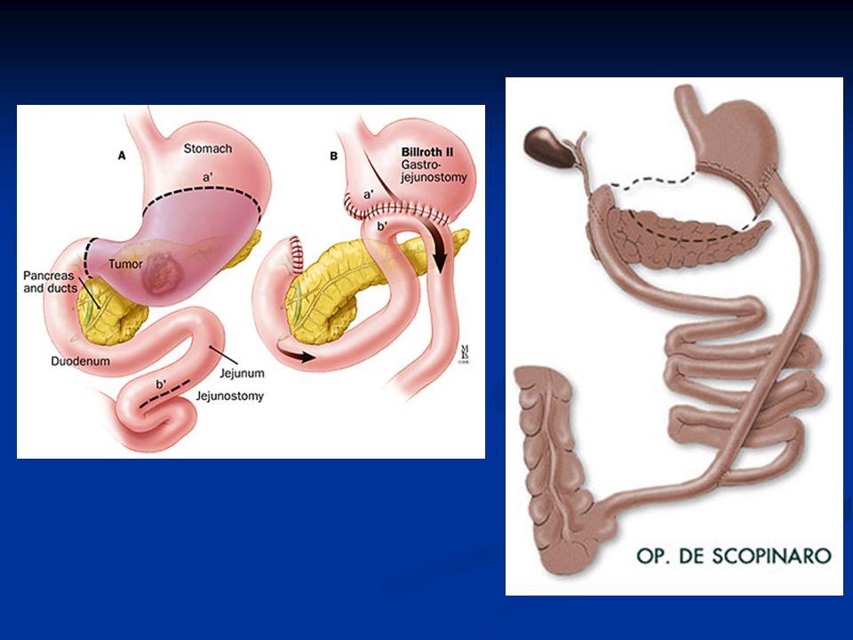 CIRURGIAS REALIZADAS LAPAROTOMIA EXPLORADORA: Laparotomia é uma manobra cirúrgica que envolve uma incisão através da parede abdominal para aceder à cavidade abdominal.