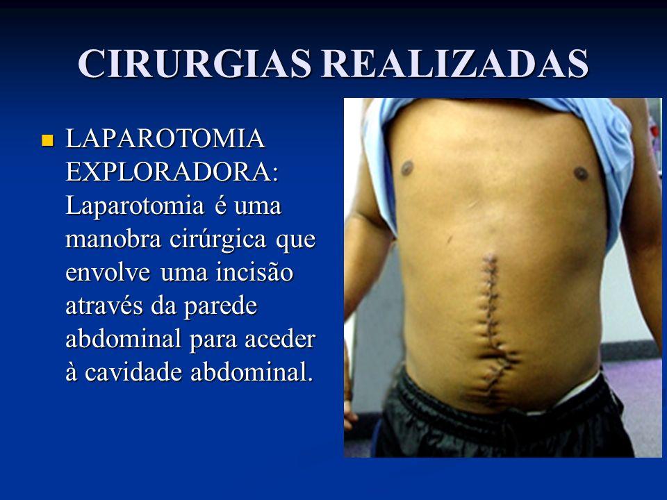 CIRURGIAS REALIZADAS LAPAROTOMIA EXPLORADORA: Laparotomia é uma manobra cirúrgica que envolve uma incisão através da parede abdominal para aceder à ca