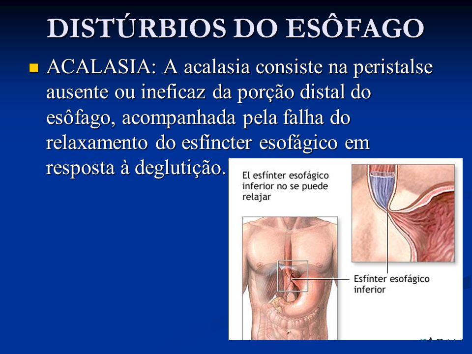 ACALASIA: A acalasia consiste na peristalse ausente ou ineficaz da porção distal do esôfago, acompanhada pela falha do relaxamento do esfíncter esofág