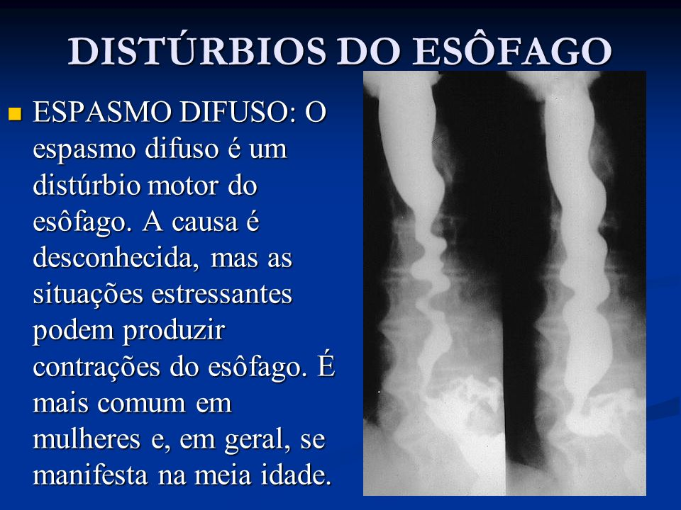 ESPASMO DIFUSO: O espasmo difuso é um distúrbio motor do esôfago. A causa é desconhecida, mas as situações estressantes podem produzir contrações do e