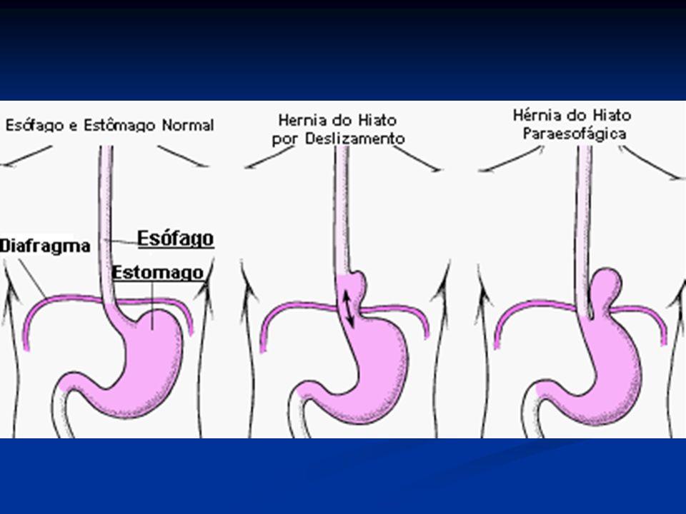 DISTÚRBIOS DO ESÔFAGO DIVERTÍCULOS: São formações saculares externas contendo uma ou mais camadas de parede esofagiana.