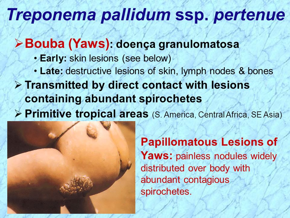 Treponema pallidum ssp. pertenue Papillomatous Lesions of Yaws: painless nodules widely distributed over body with abundant contagious spirochetes. Bo