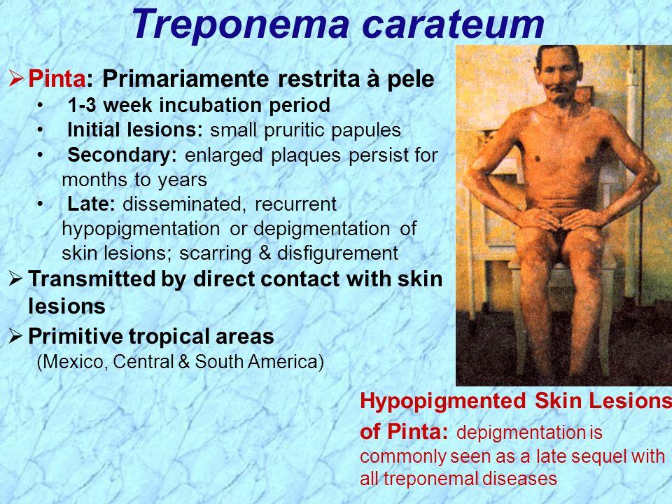 Treponema carateum Pinta: Primariamente restrita à pele 1-3 week incubation period Initial lesions: small pruritic papules Secondary: enlarged plaques
