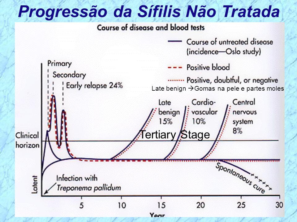 Progressão da Sífilis Não Tratada Tertiary Stage Late benign Gomas na pele e partes moles