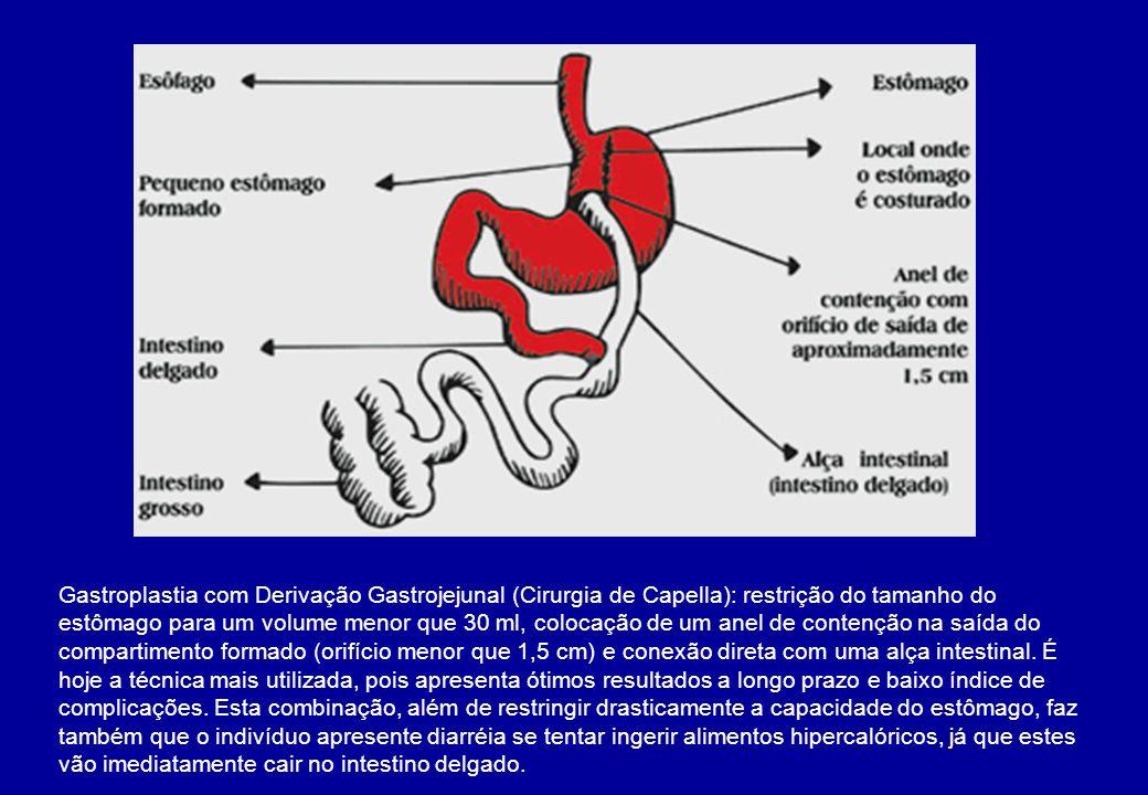 Gastroplastia com Derivação Gastrojejunal (Cirurgia de Capella): restrição do tamanho do estômago para um volume menor que 30 ml, colocação de um anel
