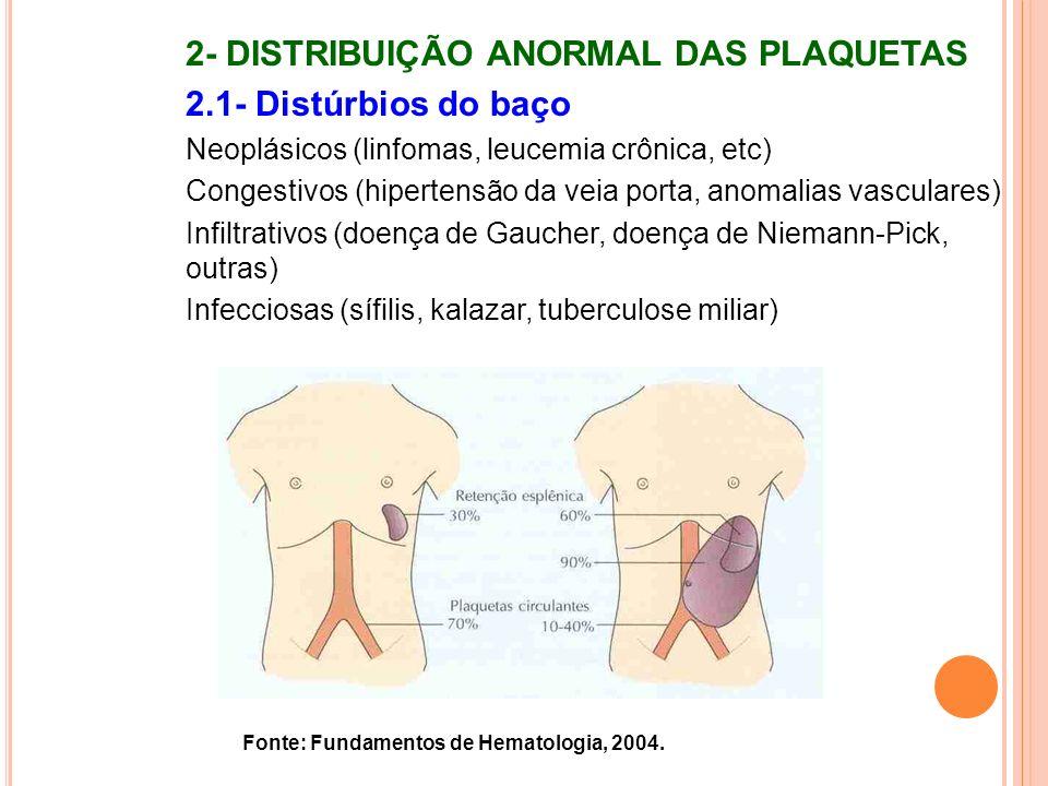 Fonte: Fundamentos de Hematologia, 2004. 2- DISTRIBUIÇÃO ANORMAL DAS PLAQUETAS 2.1- Distúrbios do baço Neoplásicos (linfomas, leucemia crônica, etc) C