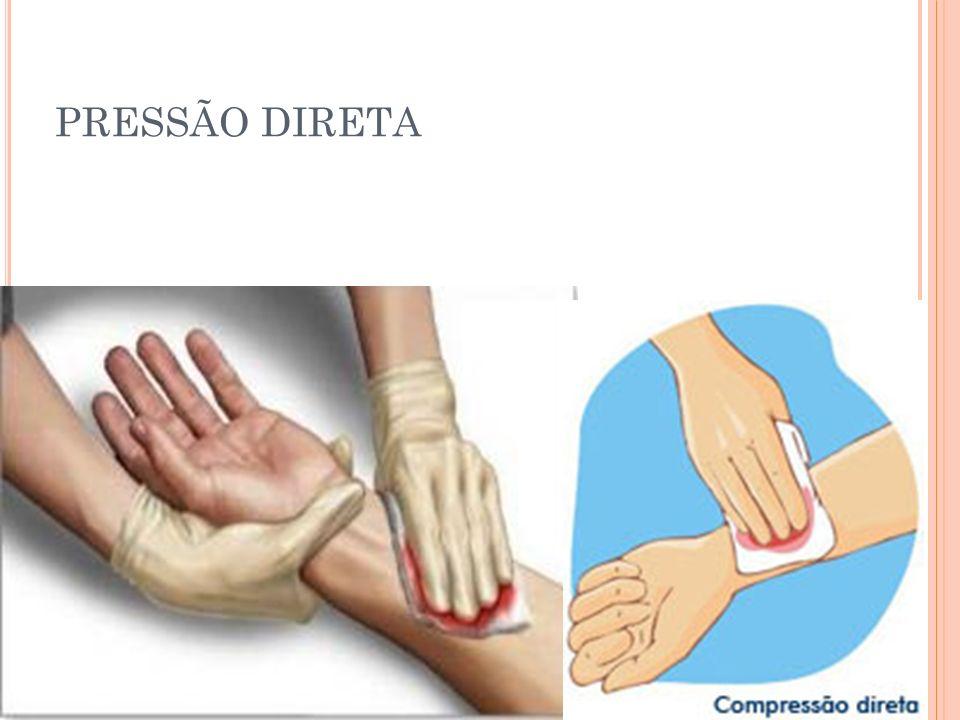 PRESSÃO DIRETA