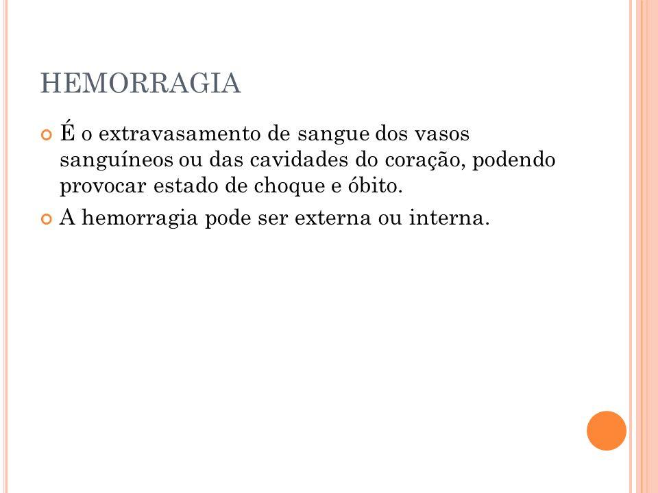 HEMORRAGIA É o extravasamento de sangue dos vasos sanguíneos ou das cavidades do coração, podendo provocar estado de choque e óbito. A hemorragia pode