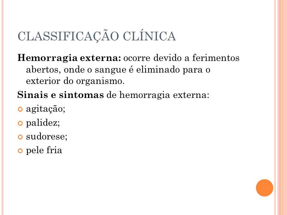 CLASSIFICAÇÃO CLÍNICA Sinais e sintomas de hemorragia externa: pulso acelerado e fraco (acima de 100 bpm); hipotensão; sede; fraqueza; alteração do nível de consciência; e estado de choque.