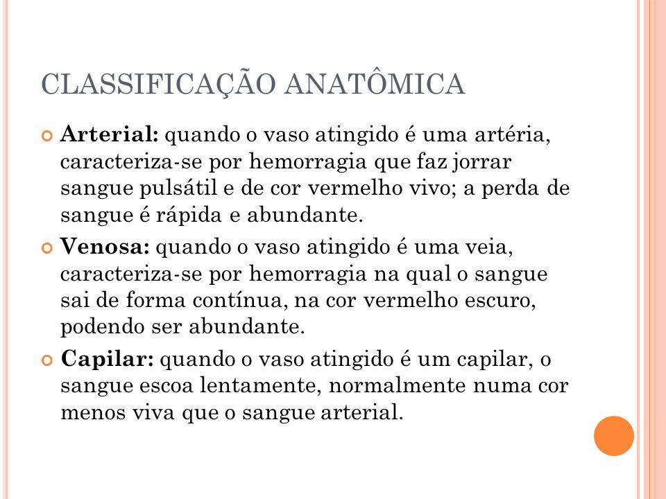 CLASSIFICAÇÃO ANATÔMICA Arterial: quando o vaso atingido é uma artéria, caracteriza-se por hemorragia que faz jorrar sangue pulsátil e de cor vermelho