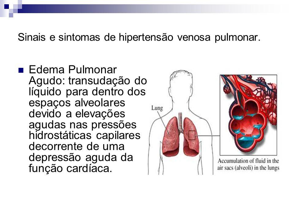 Sinais e sintomas de hipertensão venosa pulmonar. Edema Pulmonar Agudo: transudação do líquido para dentro dos espaços alveolares devido a elevações a
