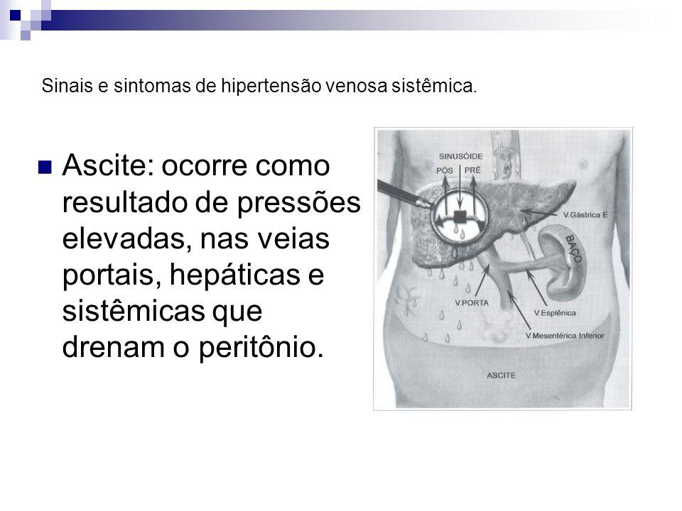 Sinais e sintomas de hipertensão venosa sistêmica. Ascite: ocorre como resultado de pressões elevadas, nas veias portais, hepáticas e sistêmicas que d