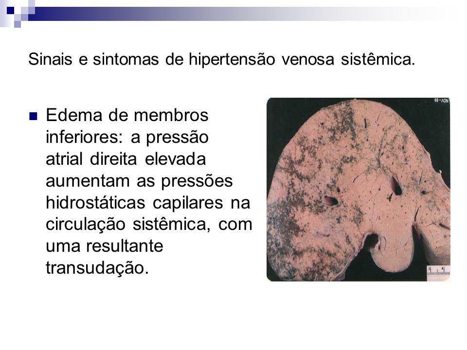 Sinais e sintomas de hipertensão venosa sistêmica. Edema de membros inferiores: a pressão atrial direita elevada aumentam as pressões hidrostáticas ca