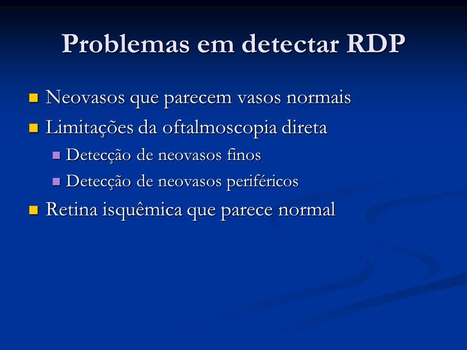 Problemas em detectar RDP Neovasos que parecem vasos normais Neovasos que parecem vasos normais Limitações da oftalmoscopia direta Limitações da oftal