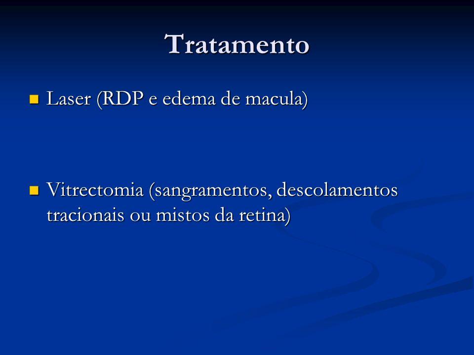 Tratamento Laser (RDP e edema de macula) Laser (RDP e edema de macula) Vitrectomia (sangramentos, descolamentos tracionais ou mistos da retina) Vitrec