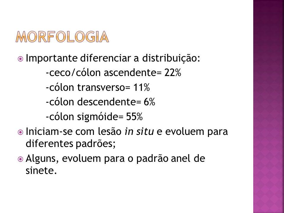 Importante diferenciar a distribuição: -ceco/cólon ascendente= 22% -cólon transverso= 11% -cólon descendente= 6% -cólon sigmóide= 55% Iniciam-se com l