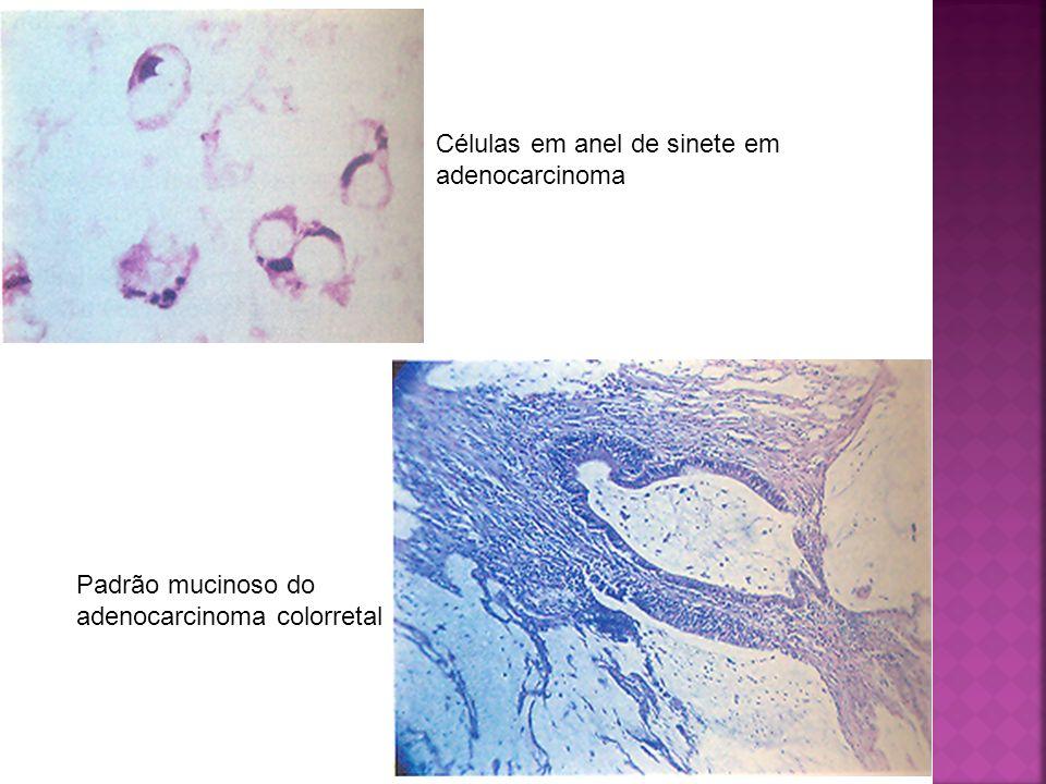 Células em anel de sinete em adenocarcinoma Padrão mucinoso do adenocarcinoma colorretal
