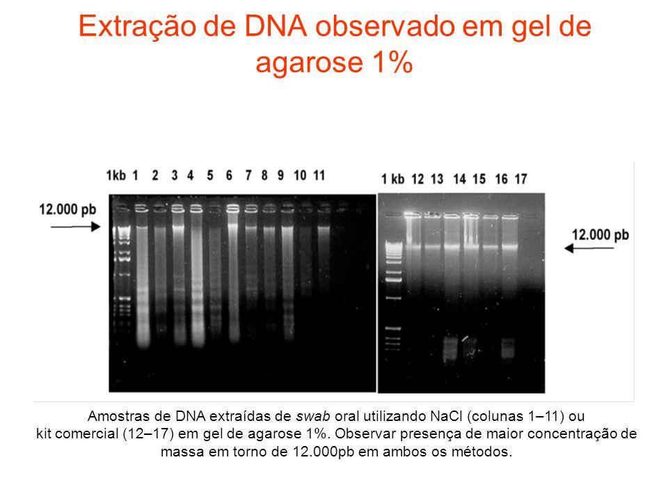 Extração de DNA observado em gel de agarose 1% Amostras de DNA extraídas de swab oral utilizando NaCl (colunas 1–11) ou kit comercial (12–17) em gel d