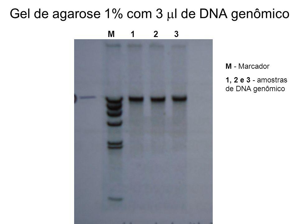 Estimativa do grau de pureza A relação entre a quantidade de DNA e de proteína é usada como parâmetro para avaliação da qualidade do DNA extraído grau de pureza = OD 260nm /OD280nm Razão = 1,7 – 2,0 Amostras cujos valores são acima de 2,0 muito RNA; Amostras cujos valores são abaixo de 1,8 contaminação com proteína O DNA pode ser quantificado e analisado quanto à sua qualidade, por meio da análise em gel de agarose: entre 0,8% e 1%.