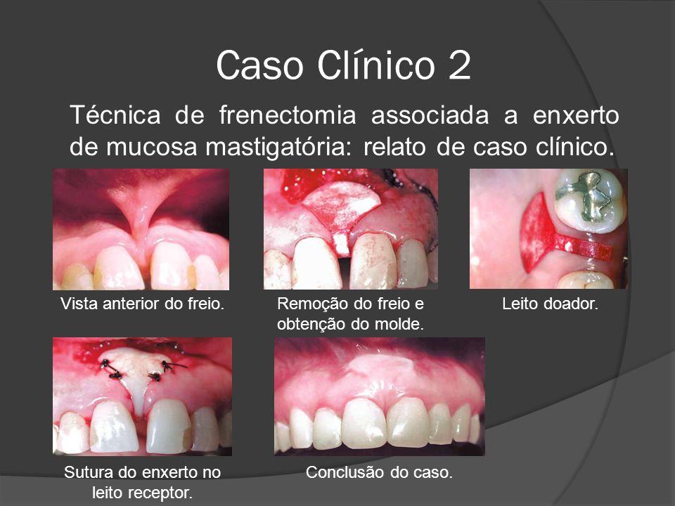 Caso Clínico 2 Técnica de frenectomia associada a enxerto de mucosa mastigatória: relato de caso clínico. Sutura do enxerto no leito receptor. Conclus