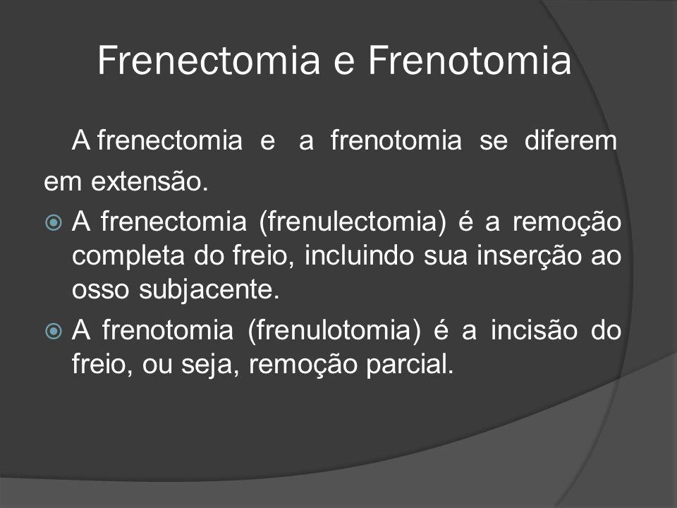 Frenectomia e Frenotomia A frenectomia e a frenotomia se diferem em extensão. A frenectomia (frenulectomia) é a remoção completa do freio, incluindo s