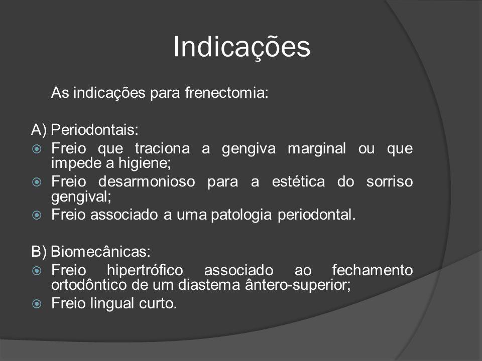 Indicações As indicações para frenectomia: A) Periodontais: Freio que traciona a gengiva marginal ou que impede a higiene; Freio desarmonioso para a e