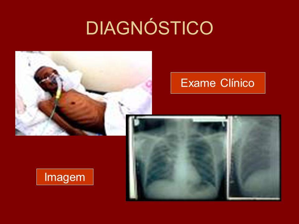 DIAGNÓSTICO Exame Clínico Imagem