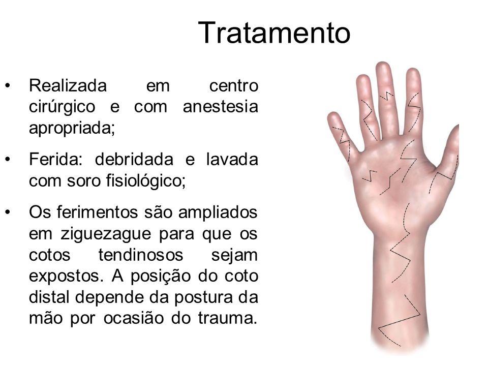 Tratamento Realizada em centro cirúrgico e com anestesia apropriada; Ferida: debridada e lavada com soro fisiológico; Os ferimentos são ampliados em ziguezague para que os cotos tendinosos sejam expostos.