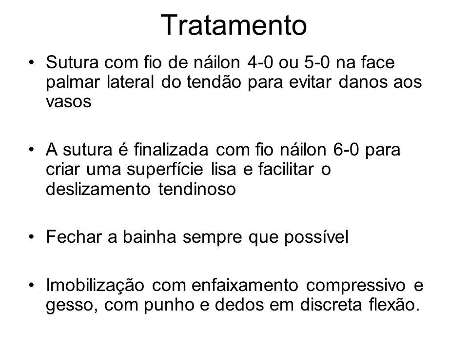 Sutura com fio de náilon 4-0 ou 5-0 na face palmar lateral do tendão para evitar danos aos vasos A sutura é finalizada com fio náilon 6-0 para criar u