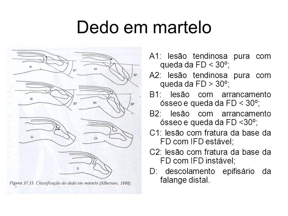 Dedo em martelo A1: lesão tendinosa pura com queda da FD < 30º; A2: lesão tendinosa pura com queda da FD > 30º; B1: lesão com arrancamento ósseo e queda da FD < 30º; B2: lesão com arrancamento ósseo e queda da FD <30º; C1: lesão com fratura da base da FD com IFD estável; C2: lesão com fratura da base da FD com IFD instável; D: descolamento epifisário da falange distal.