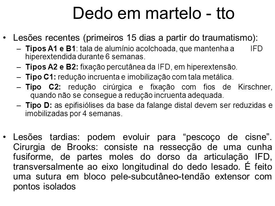 Dedo em martelo - tto Lesões recentes (primeiros 15 dias a partir do traumatismo): –Tipos A1 e B1: tala de alumínio acolchoada, que mantenha a IFD hiperextendida durante 6 semanas.