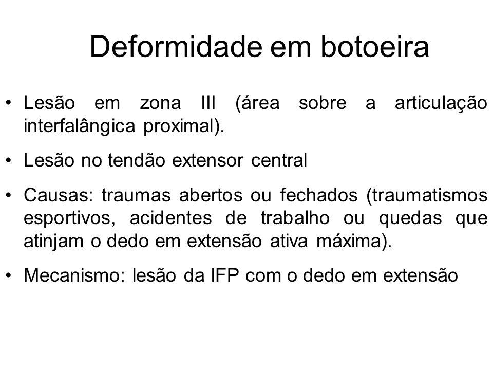 Deformidade em botoeira Lesão em zona III (área sobre a articulação interfalângica proximal).