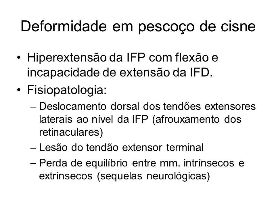 Deformidade em pescoço de cisne Hiperextensão da IFP com flexão e incapacidade de extensão da IFD. Fisiopatologia: –Deslocamento dorsal dos tendões ex
