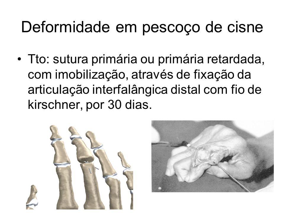 Deformidade em pescoço de cisne Tto: sutura primária ou primária retardada, com imobilização, através de fixação da articulação interfalângica distal com fio de kirschner, por 30 dias.