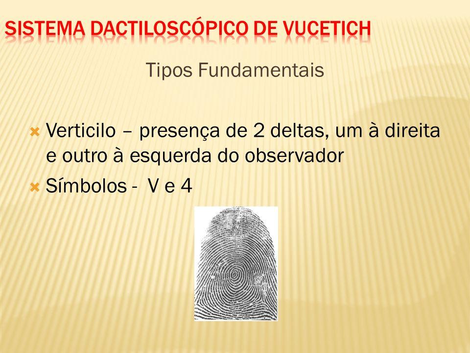 Tipos Fundamentais Presilha externa – presença do delta à esquerda do observador Símbolos - E e 3