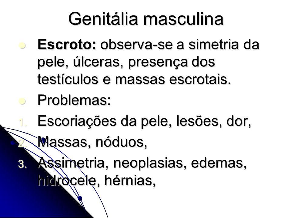 Escroto: observa-se a simetria da pele, úlceras, presença dos testículos e massas escrotais. Escroto: observa-se a simetria da pele, úlceras, presença