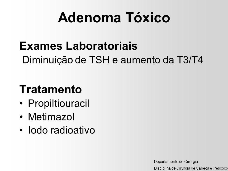 Adenoma Tóxico Exames Laboratoriais Diminuição de TSH e aumento da T3/T4 Tratamento Propiltiouracil Metimazol Iodo radioativo Departamento de Cirurgia