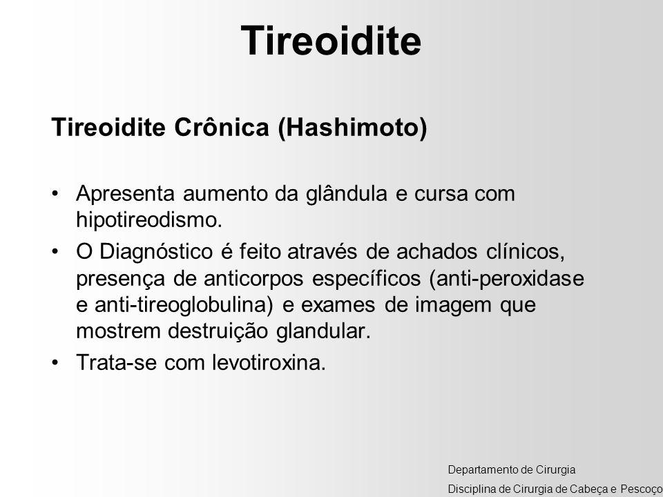 Tireoidite Tireoidite Crônica (Hashimoto) Apresenta aumento da glândula e cursa com hipotireodismo. O Diagnóstico é feito através de achados clínicos,