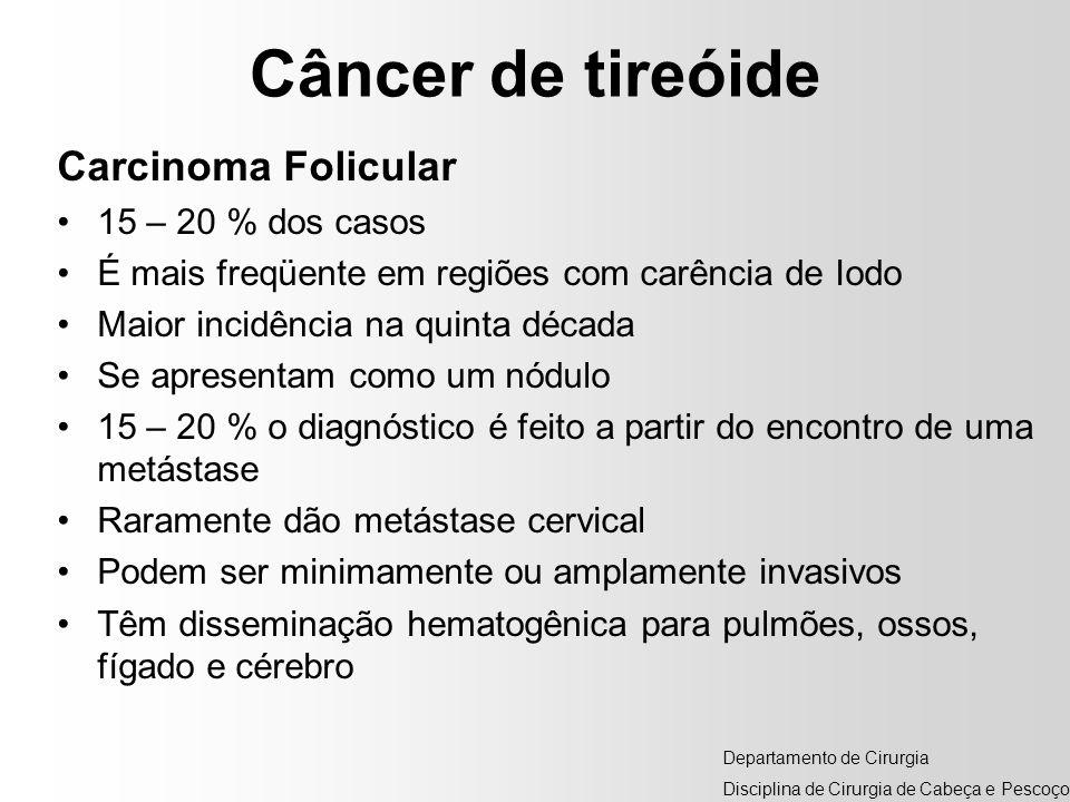 Câncer de tireóide Carcinoma Folicular 15 – 20 % dos casos É mais freqüente em regiões com carência de Iodo Maior incidência na quinta década Se apres