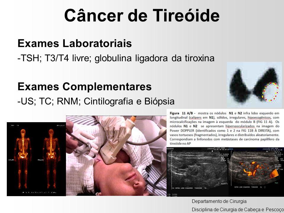 Câncer de Tireóide Exames Laboratoriais -TSH; T3/T4 livre; globulina ligadora da tiroxina Exames Complementares -US; TC; RNM; Cintilografia e Biópsia