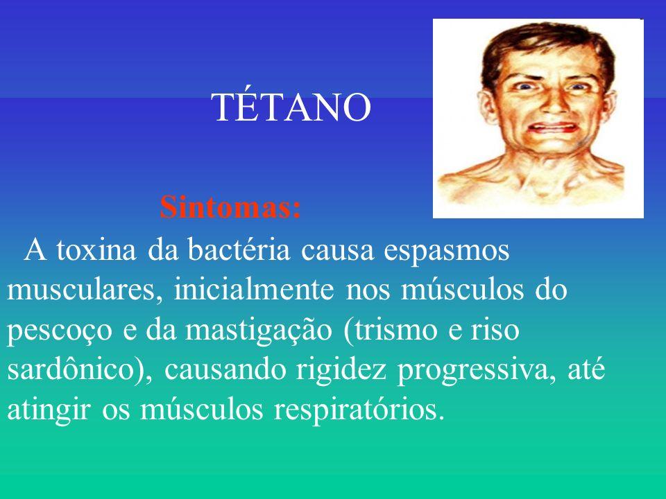 TÉTANO Sintomas: A toxina da bactéria causa espasmos musculares, inicialmente nos músculos do pescoço e da mastigação (trismo e riso sardônico), causa