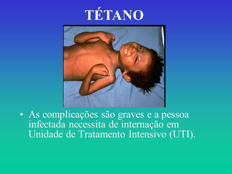 As complicações são graves e a pessoa infectada necessita de internação em Unidade de Tratamento Intensivo (UTI). TÉTANO