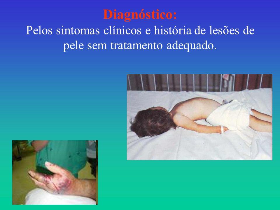 Diagnóstico: Pelos sintomas clínicos e história de lesões de pele sem tratamento adequado.